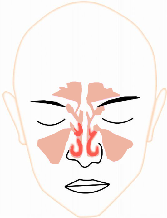 の ある 鼻水 粘り気