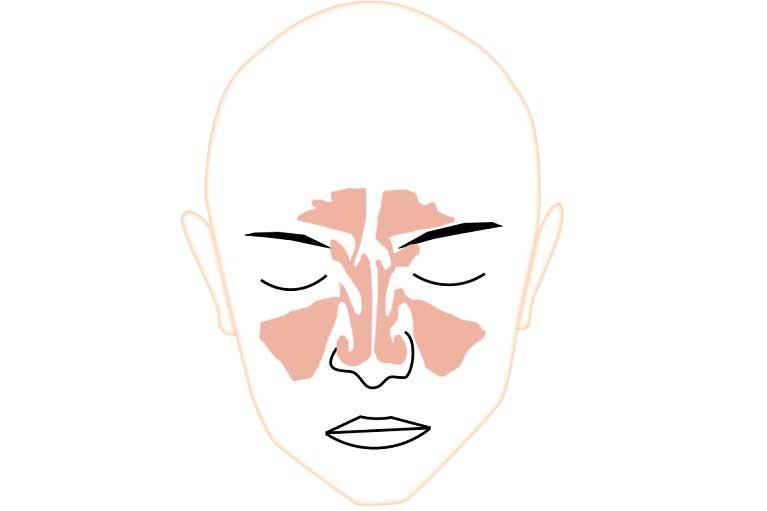 鼻腔形態改善術後(鼻中隔矯正術+両側下鼻甲介切除術)