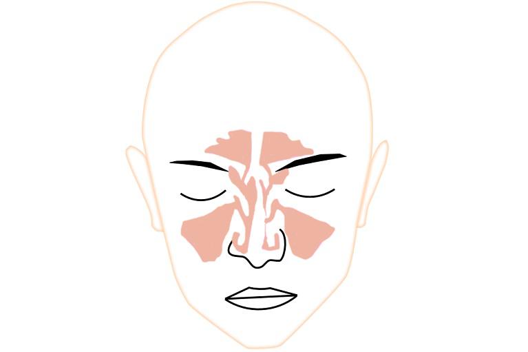 鼻中隔弯曲症病態