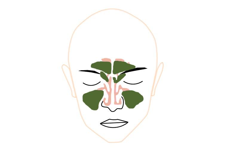 慢性副鼻腔炎病態