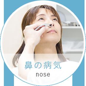 鼻の病気 nose