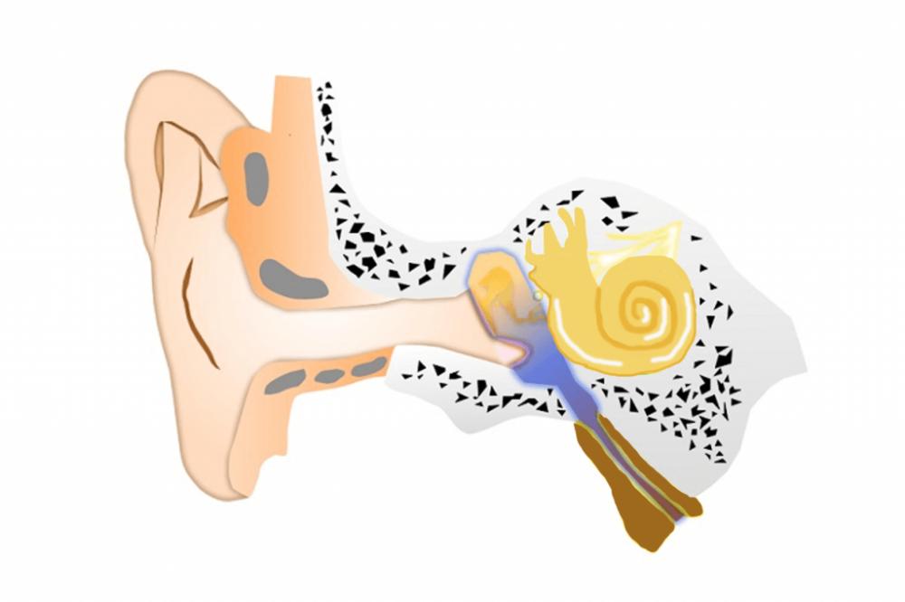 滲出性中耳炎病態