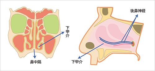 鼻粘膜焼灼術(レーザー治療)