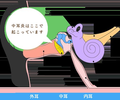 中耳炎ってどんな病気?