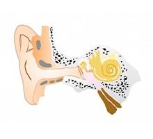 鼓膜チューブ留置術